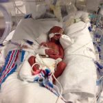In the NICU