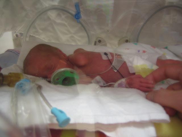 Preemie Update:  Audrey Keating